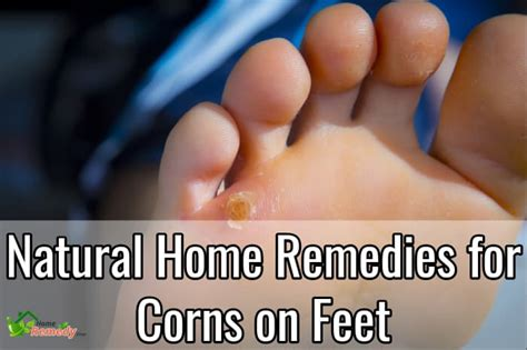home remedies for corns on home remedies