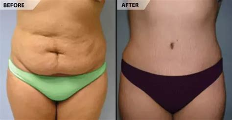 tying tummy after c section plastic surgery what should i expect after a tummy tuck