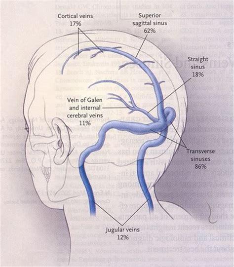 vene della testa trombosi delle vene e dei seni cerebrali parte prima