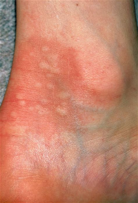 itchy bumps on hands that spread nhs direct wales encyclopaedia nettle rash