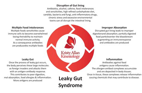 leaky gut syndrome ebook leaky gut syndrome final drjockers com