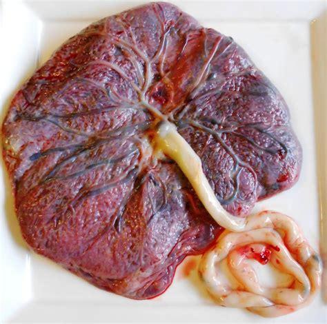 anterior placenta and c section e a placenta a 225 rvore da vida caf 233 m 227 e