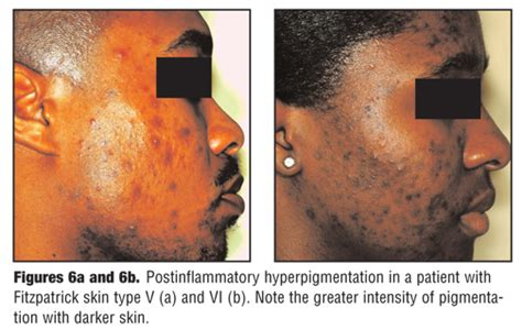 A Review Of Acne In Ethnic Skin Pathogenesis Clinical | a review of acne in ethnic skin pathogenesis clinical