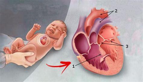 penyakit jantung bawaan ciri gejala penyebab