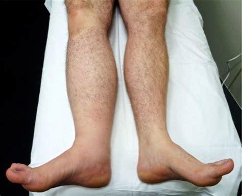losing leg hair on men treatment options melanoma institute australia