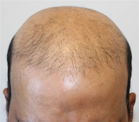 Bad Hair Transplants | bad hair transplant procedure marc dauer md