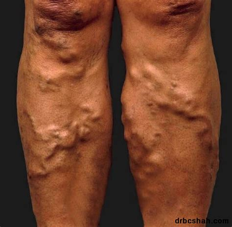 Blood Clot In Leg Treatment At Home by Safe And Highly Effective Revolutionary Legs Varicose Vein