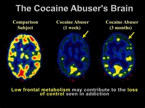 Brain Detox For Dogs by Cocaine Addiction Which Can Cause Severe Biological