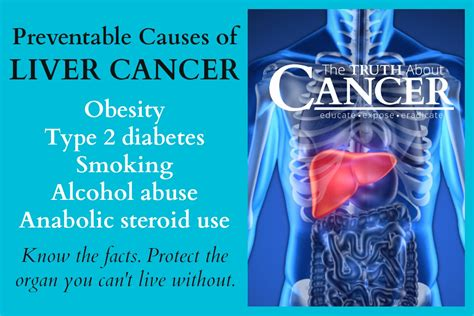 how can a live with cancer statistics and causes of liver cancer the about cancer