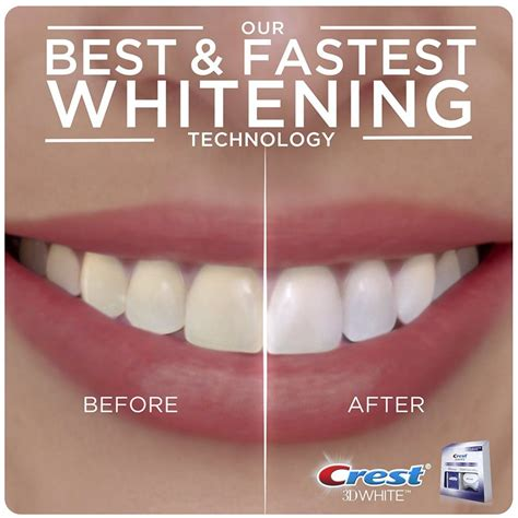 crest whitening strips with light best whitening strips review 2018 dentalsreview