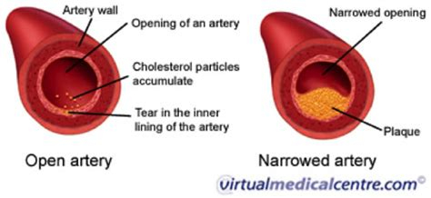 artery diagram cholesterol health calabrian citrus bergamot buy
