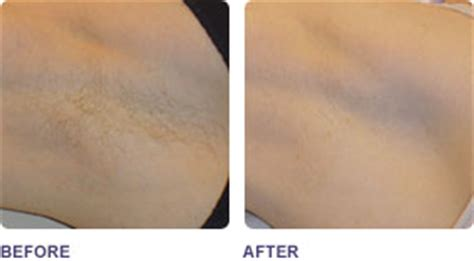 diode laser hair removal before and after laser hair removal rochester rochester laser hair removal 14624 laser hair removal