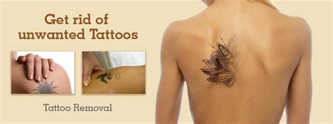 tattoo cost in pune laser tattoo removal laser treatment for tattoo removal