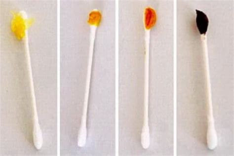 ear wax color here s what the color of your earwax can tell you about