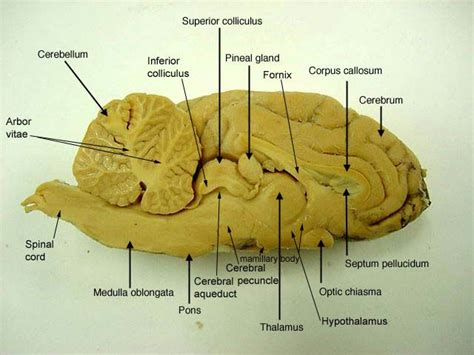 sagittal section of brain labeled pin by melissa king on a p pinterest