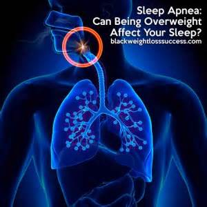 How Sleep Apnea Can Hurt A Relationship by Sleep Apnea Can Being Overweight Affect Your Sleep
