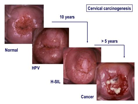 about cervical cancer newhairstylesformen2014 com what does a colposcopy look like newhairstylesformen2014 com