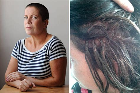 extension in shaved back and side hair hair extensions stuck in with super glue force mum to
