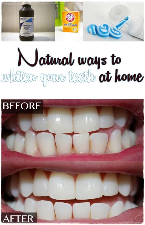 ways to whiten your teeth at home nbeautytips