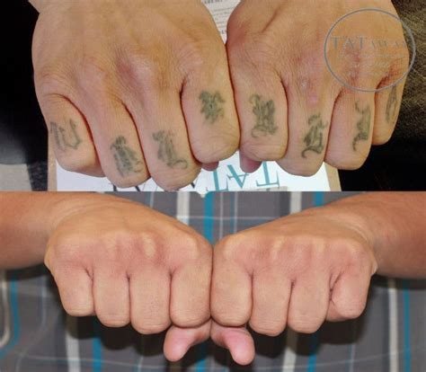 wrist tattoo removal 40 best removal images on arm