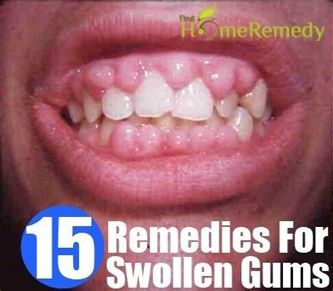pin by sharonbell on home remedies