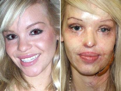 katie piper british model burned in sulfuric acid attack