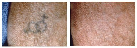 laser tattoo removal san francisco removal san francisco plastic surgery and laser