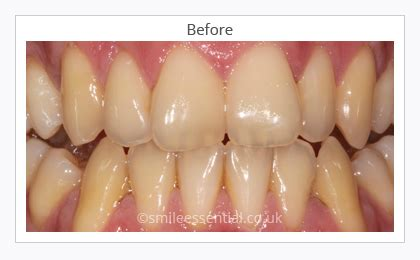 teeth whitening leicester smile essential