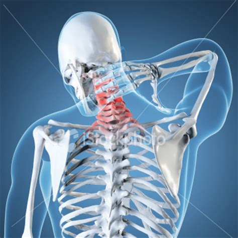 multi imagenes medicas s a s importancia de la radiologia en medicina