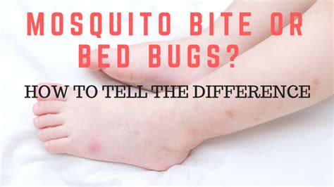 how to tell bed bug bites from mosquito bites mosquito bite bed bug bite difference