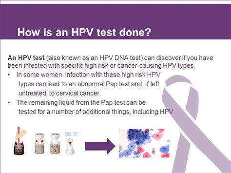 hpv dna test hpv testing and genotyping ppt