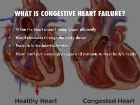 congestive failure 3 presentation symptoms and signs of failure signs of a attack