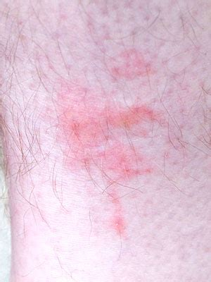 bed bugs rash what do bed bugs look like bed bug rash treatment and