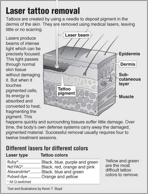 pain of laser tattoo removal information graphic about laser removal with links