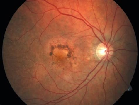 macular pattern dystrophy the retina reference macular degeneration