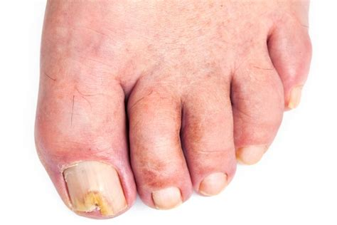 Fungus In Stool Treatment by Toenail Fungus Pictures Symptoms Causes Treatment
