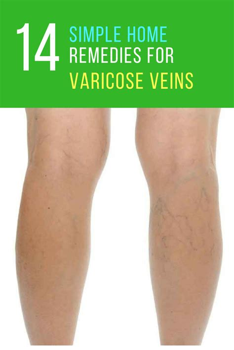 home remedies for varicose veins 17 ways to get rid of