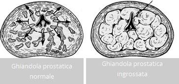 ipertrofia prostatica benigna alimentazione ipertrofia prostatica benigna guaribile in due settimane