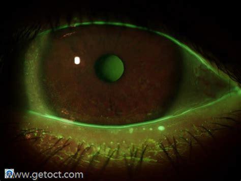 woods l eye exam dry eye when eyes hurt