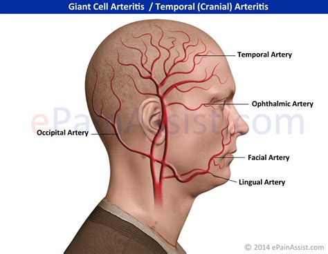 How Does Temporal Arteritis Cause Blindness cell arteritis symptoms treatment diagnosis