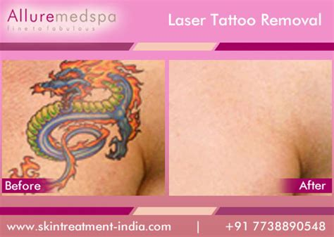 tattoo removal in india laser removal information cost clinics doctors
