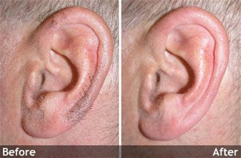 ear hair removal permanent ear hair removal by laser image gallery hairy ears treatment