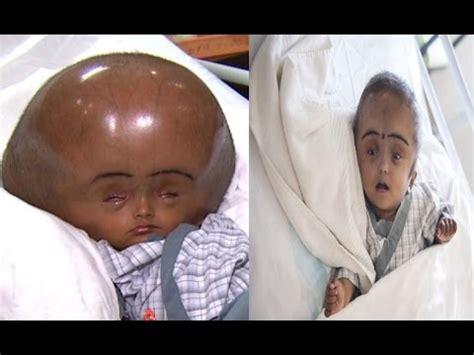 imagenes niños microcefalia nace ni 241 a con dos cabezas nace ni 241 a con dos cabezas en