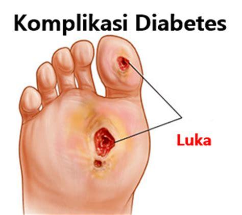 Komplikasi Diabetes Tipe 2 komplikasi diabetes melitus kencing manis pada jantung mata dan kaki