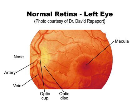 fundus exam findings eye examination wikidoc