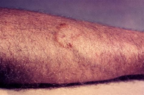fungal skin infections ringworm fungal rash ringworm causes symptoms treatment fungal