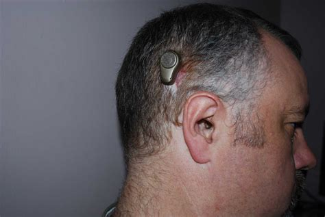 getting a perm with a baba hearing implant can i baha bahs surgery ear community