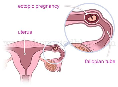 how does a a period bleeding spotting in early pregnancy the period
