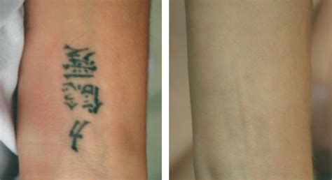 q switch laser tattoo removal before and after removal laserderm skin care center