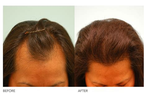 hair pieces for women with reseding hairlines styles for women with receding hairlines